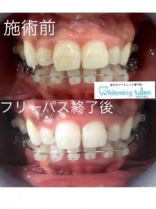 【歯列矯正中のホワイトニングについて】