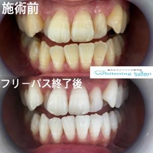 【歯の黄ばみ状態をチェックする方法!】