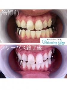 【iQOSなら歯は黄色くならない、は間違い!?】