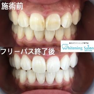【歯に着色しやすい食べ物とは?】