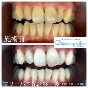 【歯の表面のペリクル層と知覚過敏】