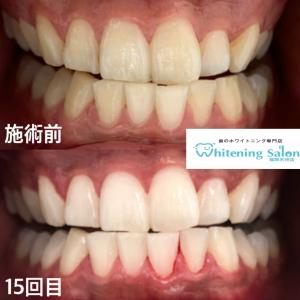 【歯垢(プラーク)と歯石の落とし方】