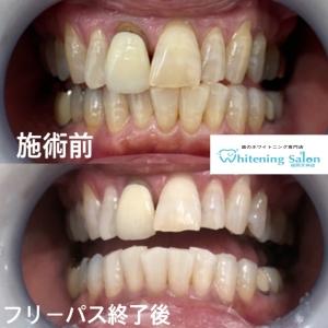 【歯垢と歯石の違い】