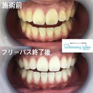 【歯石ができやすい人の特徴】