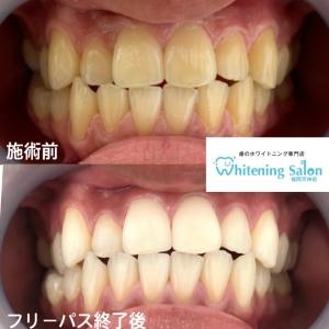 【虫歯のメカニズム】