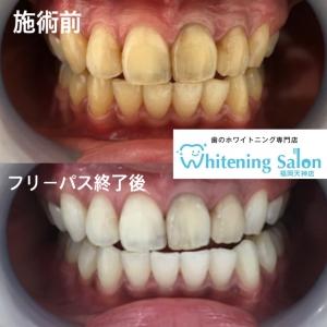 【神経がない歯のホワイトニング】