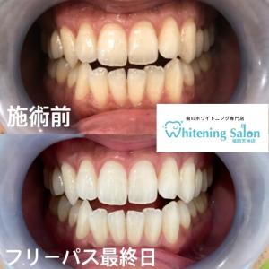 【口内炎の原因と治療方法】