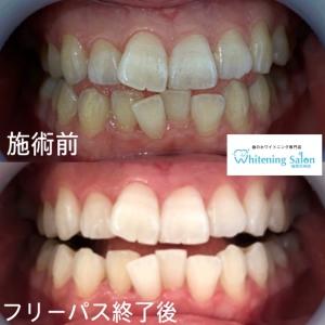 【歯と体の関係】