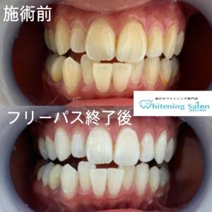 【なんで歯が黄色くなるのか?】