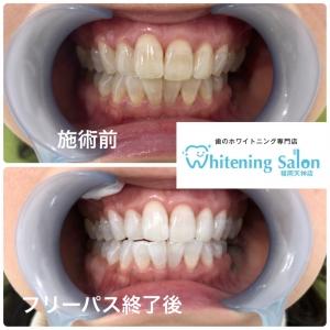 【歯と体内の関係】