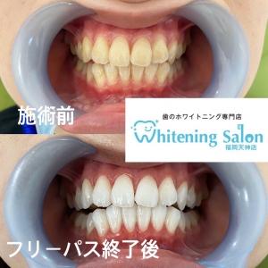 【歯磨きをしても虫歯になるのはどうして?】