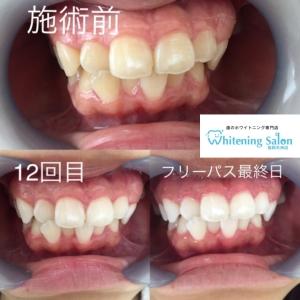 【歯に白い斑点が!?】