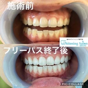 【歯科衛生士とは??】