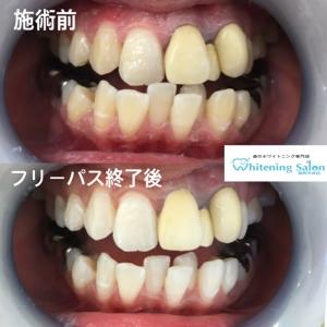 【仮歯と差し歯の違いとは?】