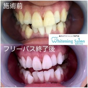 【歯痛の原因とは】