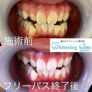 【歯の一部だけが白いホワイトスポットについて】