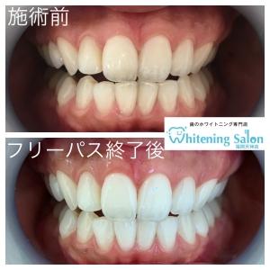 【歯茎が白くなる病気について・・・】