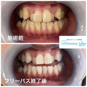 【歯についての質問!】