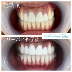 【歯ブラシの種類と選び方】