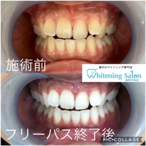 【歯石除去の大切さ!放置すると怖い】