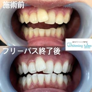 【歯の質問箱〜虫歯と矯正〜】