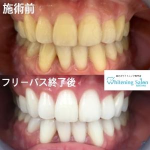 【歯科技工とは?】