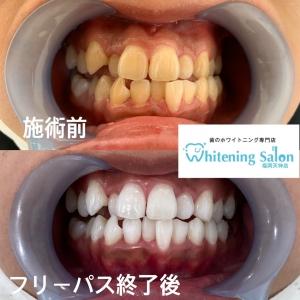 【定期的な歯のメンテナンスは大事です】
