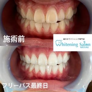 【あなたの歯の白さは?】