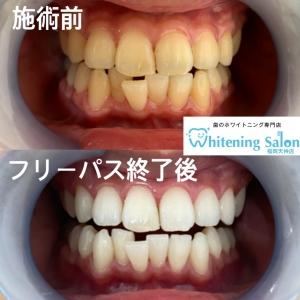 【歯の痛みのメカニズム】