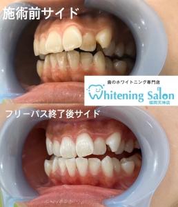 【ホワイトニングと歯並びの関係について】