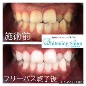 【舌磨きの重要性!】