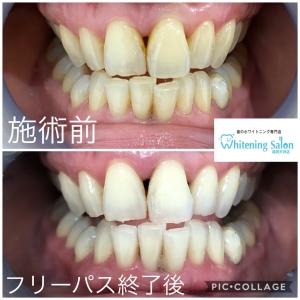 【歯が黄色くなる6つの原因と治療法】