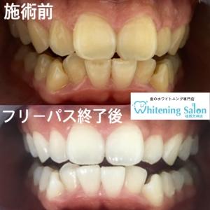 【健康な歯茎はピンク色!】