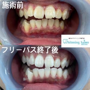 【歯の黄ばみに効くお手軽な方法】