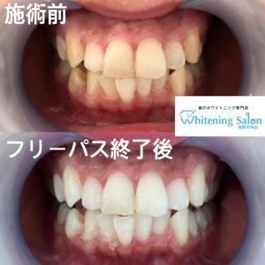 【審美歯科の費用】