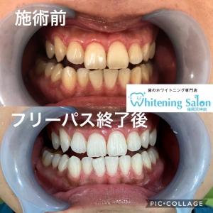 【起床後の歯磨きは重要!】