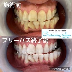 【歯医者でのホワイトニングとセルフホワイトニングの違い】