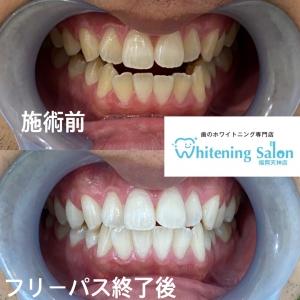 【2枚歯について!】