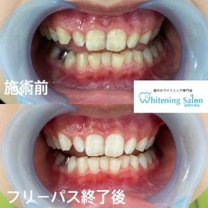 【歯の色の詰め物について】