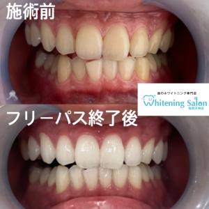 【歯の形・並びをよくするための治療方法】