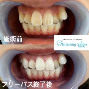 【失活歯とは?】
