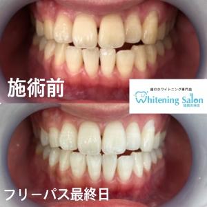 【歯磨き粉で歯は白くならない!】
