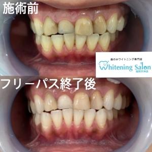 【差し歯とは?】