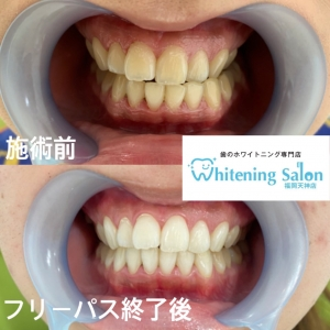【歯の色のくすみ】