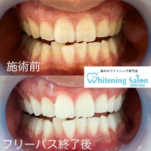 【歯に関する豆知識!嘘!?本当!?】