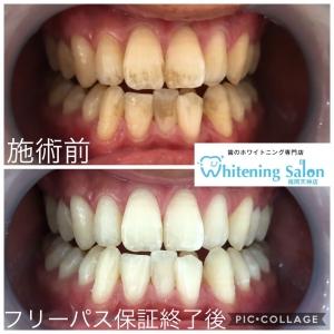 【口臭予防に歯間のお掃除!】