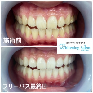 【歯の健康に大切な食事】
