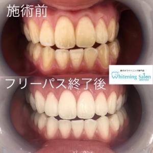 【歯を20本以上を残すための4つの対策】
