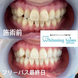 【歯垢と歯石の違いとは?】