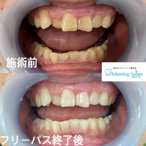 【歯茎の出血で簡単にできる三つのケア】
